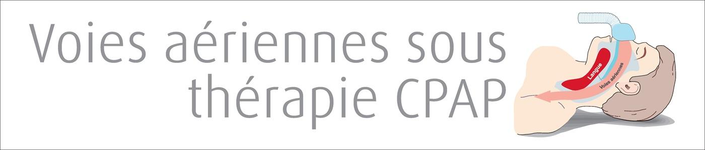 CPAP Treated Airway - Voies aeriennes sous therapie CPAP