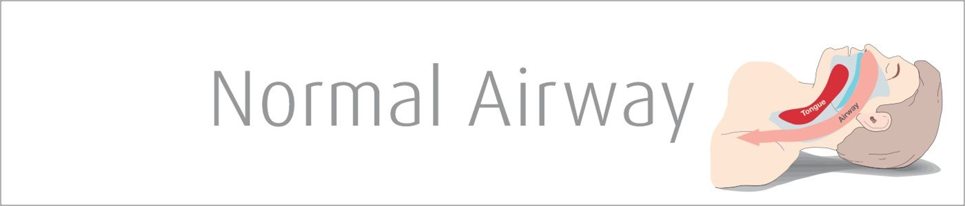 Normal Airway