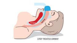 Diagram of free flowing air with continuous positive airway pressure therapy