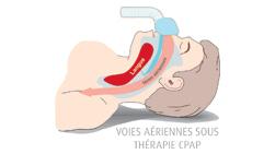 Diagramme des Voies Aériennes sous thérapie CPAP